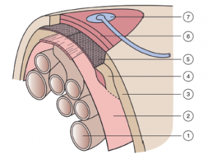 Figure 1: The vacuum-assisted wound closure and mesh-mediated fascial traction technique. 1. Bowel 2. Visceral protective layer 3. Abdominal wall 4. Abdominal wall fascia 5. Polypropylene mesh, consisting of two mesh halves, sutured to the fascia laterally and to each other in the midline 6. Two pieces of polyurethane foam placed on top of the mesh and subcutaneously between the wound edges 7. Tubing set with an interface pad attached to an opening in the self-adhesive drapes and connected to the vacuum source. Reprinted with permission from Acosta S, et al. Multicentre prospective study of fascial closure rate after open abdomen with vacuum and mesh-mediated fascial traction. Br J Surg 2011;98:735–43. Copyright 2016 John Wiley & Sons.5