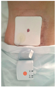 Figure 2. PICO◊ applied to the wound of a Crohn's disease patient after elective surgery with primary wound closure. Courtesy of Dr Gianluca Pellino