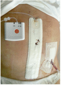 Figure 3. Placement of PICO◊ on a wide laparotomy. Reprinted with permission from Selvaggi F, Pellino G, Sciaudone G, et al. New advances in negative pressure wound therapy (NPWT) for surgical wounds of patients affected with Crohn's disease. Surg Technol Int 2014;24:83–929