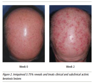 Figure 2. Imiquimod 3.75% reveals and treats clinical and subclinical actinic keratosis lesions