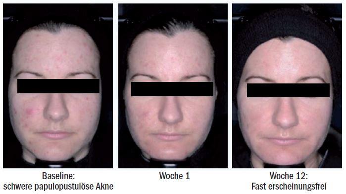 Patientenbeispiel: Verbesserung der initial schweren papulopustulösen Akne (IGA 4) nach 12 Wochen Therapie mit Epiduo® Forte zu einem fast erscheinungsfreien Hautbild (IGA 1).