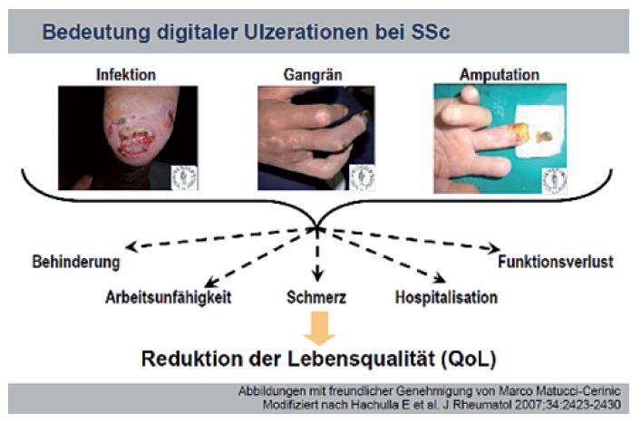 Abb. 1: Verminderte Lebensqualität durch digitale Ulzerationen